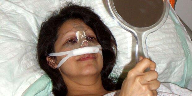 Beauty-Docs: Daniela bekommt neue Nase