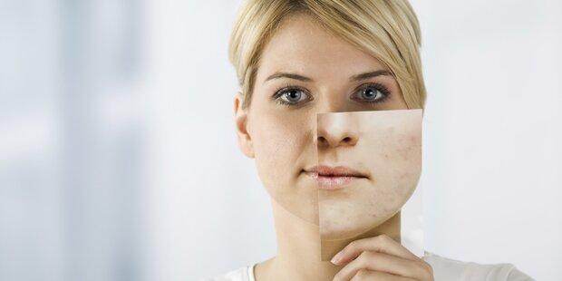 Diese 13 Dinge verursachen Akne