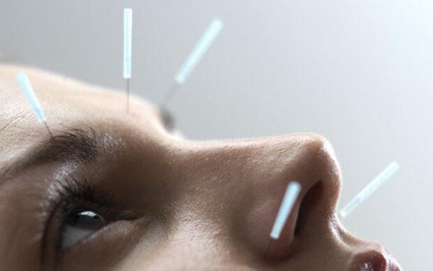 Akupunktur wirkt tatsächlich