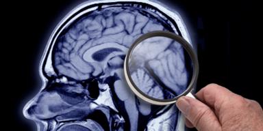 So lässt sich Ihr Alzheimer-Risiko heute schon vorhersagen
