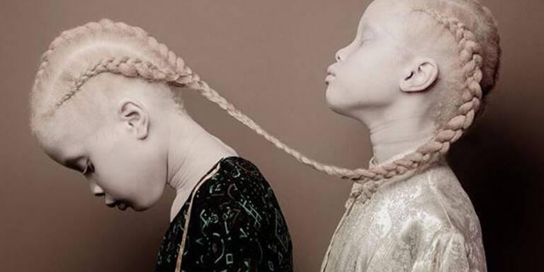 Diese Albino-Zwillinge erobern die Modewelt