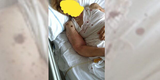 Schock-Foto von Ameisen-Attacke in Spital