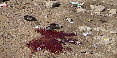 Selbstmordanschlag auf Militärkrankenhaus