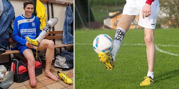 Austro-Kicker mit Prothese ist tot
