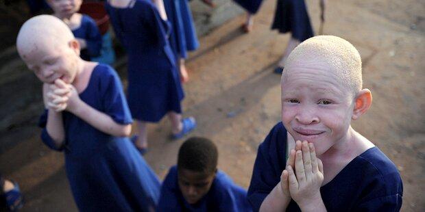Angreifer hacken Albino Hand ab