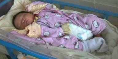 Baby kommt mit 5,5 kg Körpergewicht zu Welt