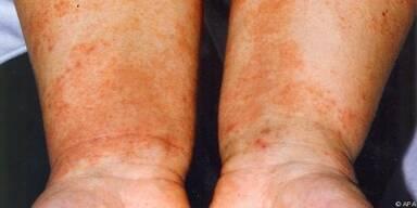 Bei Neurodermitis eignen sich Baumwolle und Leinen