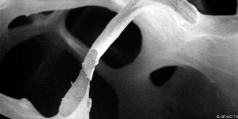 Bis zu 700.000 Österreicher leiden an Knochenschwund