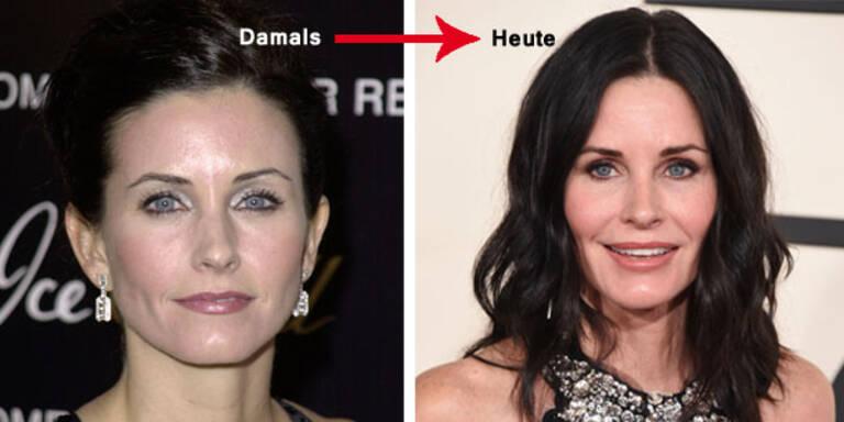 Der Botoxwahn zerstört ihre Schönheit