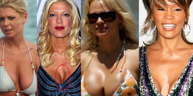 Das Hollywoods schlechteste Brüste tara reid tori spelling pamela anderson whitney houston