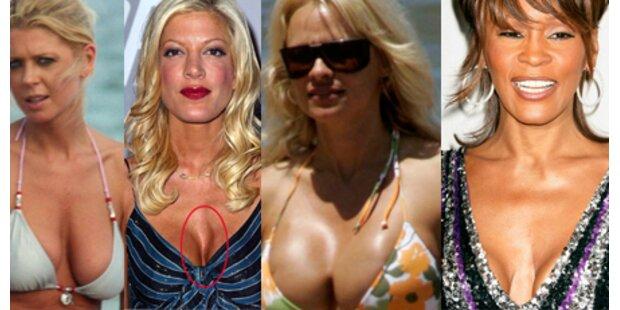 Hollywoods hässlichste Silikon-Brüste