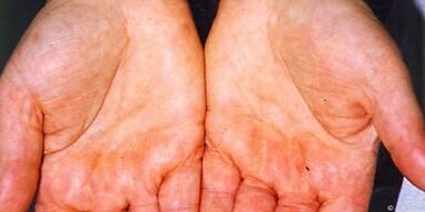 Die Salbe verspricht Linderung bei Neurodermitis