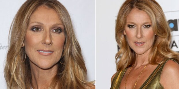 Celine Dion findet ihre Nase zu groß