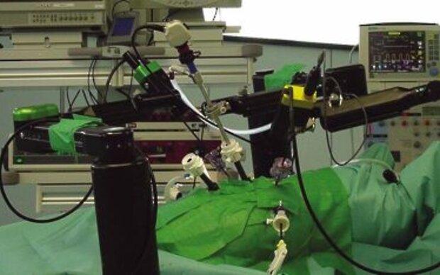 Trends der Schlüsselloch-Chirurgie auf Kongress