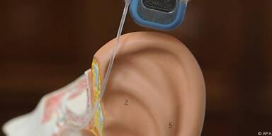 Frühe Implantierungen erfolgreicher