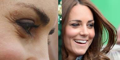 Eingefroren: Kate in der Botox- Falle?