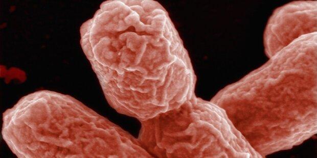 Plastik-fressendes Bakterium entdeckt