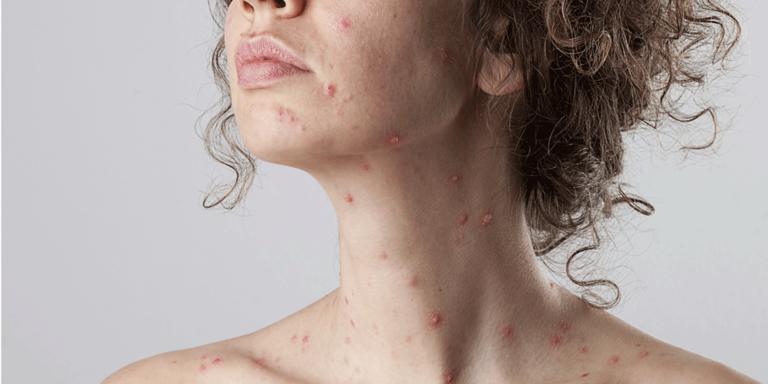 Masern - eine der ansteckendsten Erkrankungen