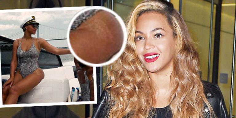 Beyoncé steht zu Dehnungsstreifen