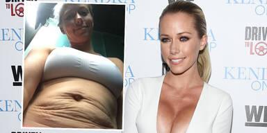 Kendra Wilkinson zeigt Bauch