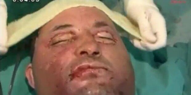 Selbstmörder: Spender für Gesichtstransplant
