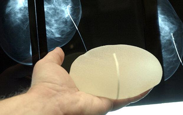 Verwirrung um defekte Brustimplantate
