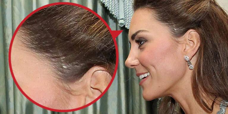 Kate: Rätsel um riesige Kopf-Narbe
