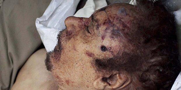 Gaddafi starb an Lähmung des Atemzentrums