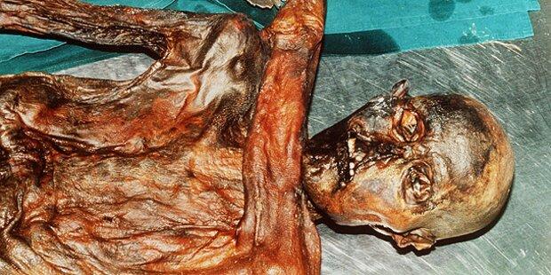 Ötzi hatte schlechte Zähne