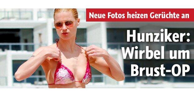 Wirbel um Brust-OP bei Hunziker