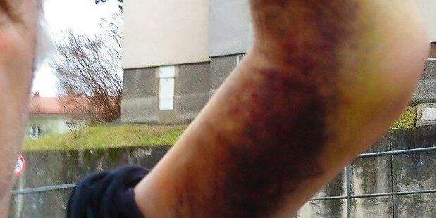 Auch ihm brach Polizist den Arm