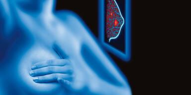 Innovationen im Kampf gegen Brustkrebs