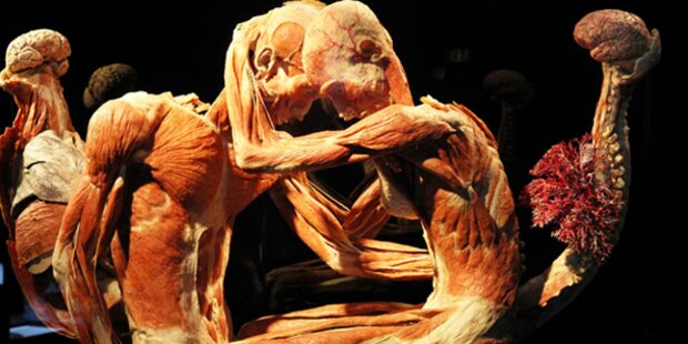 Wiener vermacht sich den Körperwelten
