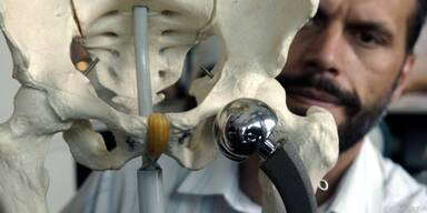 Künstliche Gelenke passen oft nicht zum Patienten
