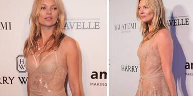 Kate Moss' bizarrer Beautytrick