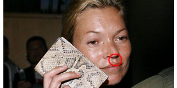 Ungeschminkt! Kate Moss zeigt Falten & Pickel