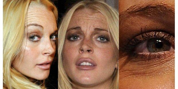 Lindsay Lohan: Tiefe Falten mit 23