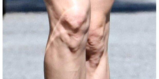 Wem gehören die geschwollenen Knie?