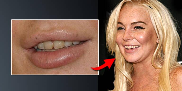 Lindsay Lohan zeigt sich ungepflegt