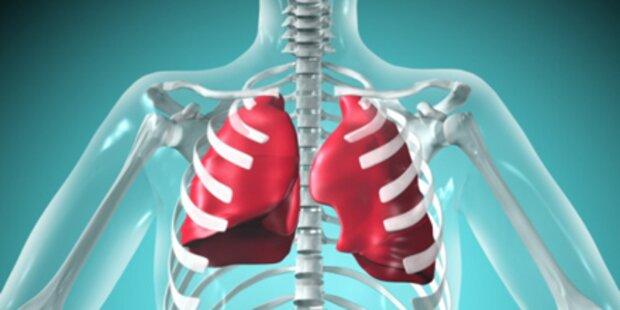 Das ist ein Lungen-Infarkt
