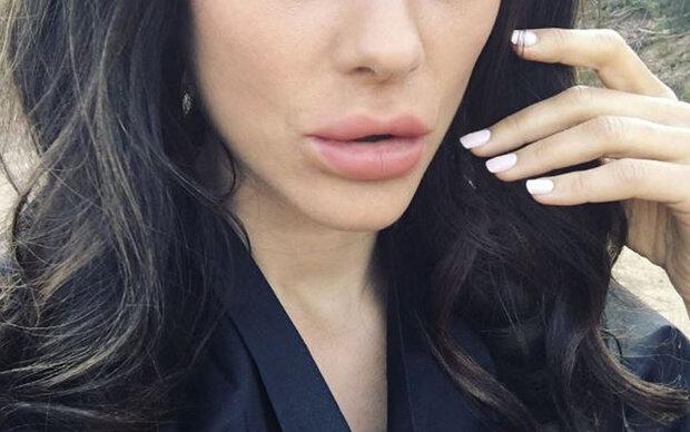 Welche Oscar-Gewinnerin hat jetzt Schlauchboot-Lippen?