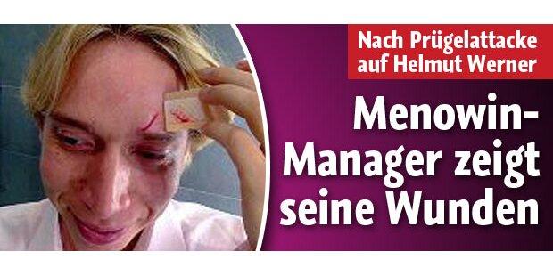Menowin-Manager zeigt seine Wunden