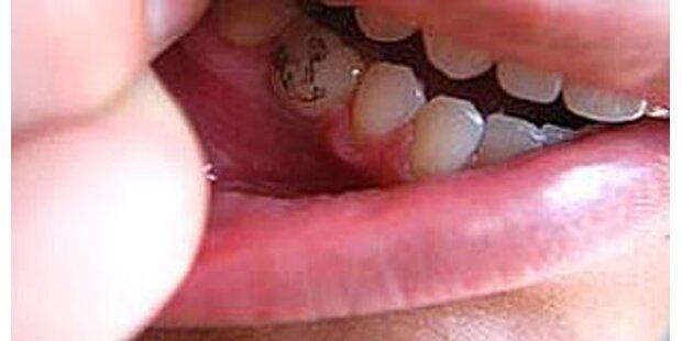 Zahn-Tattoos sind schwer im Kommen