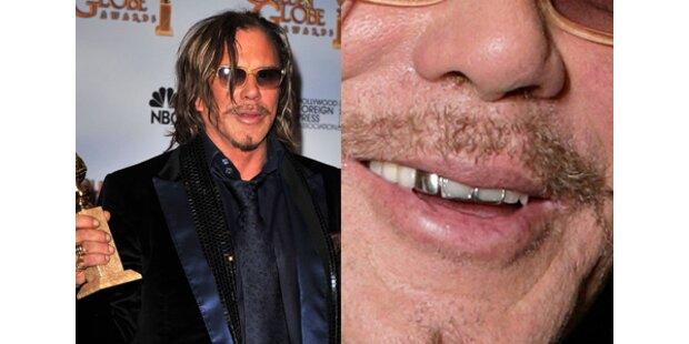 Mickey Rourke: Ein Star mit Zahnproblem?