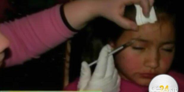 8-Jähriger Botox gespritzt - Sorgerecht weg