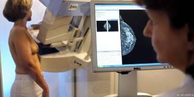 Neue Brustkrebs-Medikamente hemmen Östrogenbildung