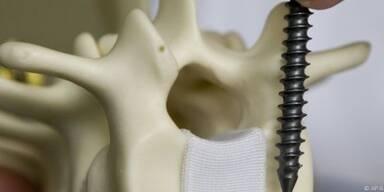 Neuer Stoff könnte Schrauben und Platten ersetzen