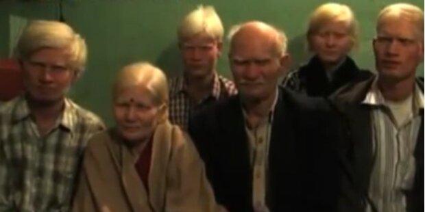 Das ist die größte Albino-Familie der Welt