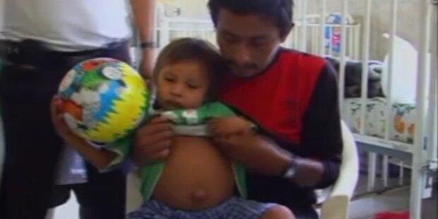 Peru: Dreijähriger trägt Zwilling im Bauch