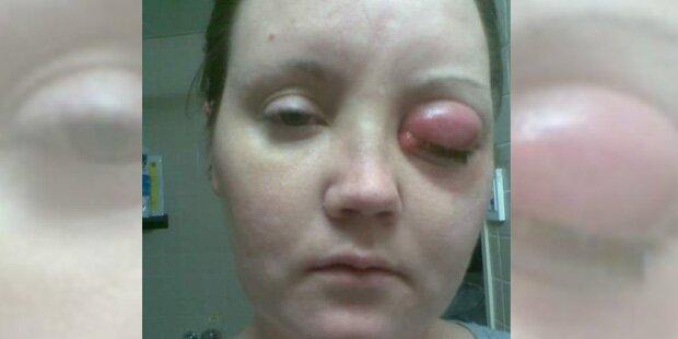 Parasit in Linse: Mutter (38) blind, glatzköpfig und gelähmt